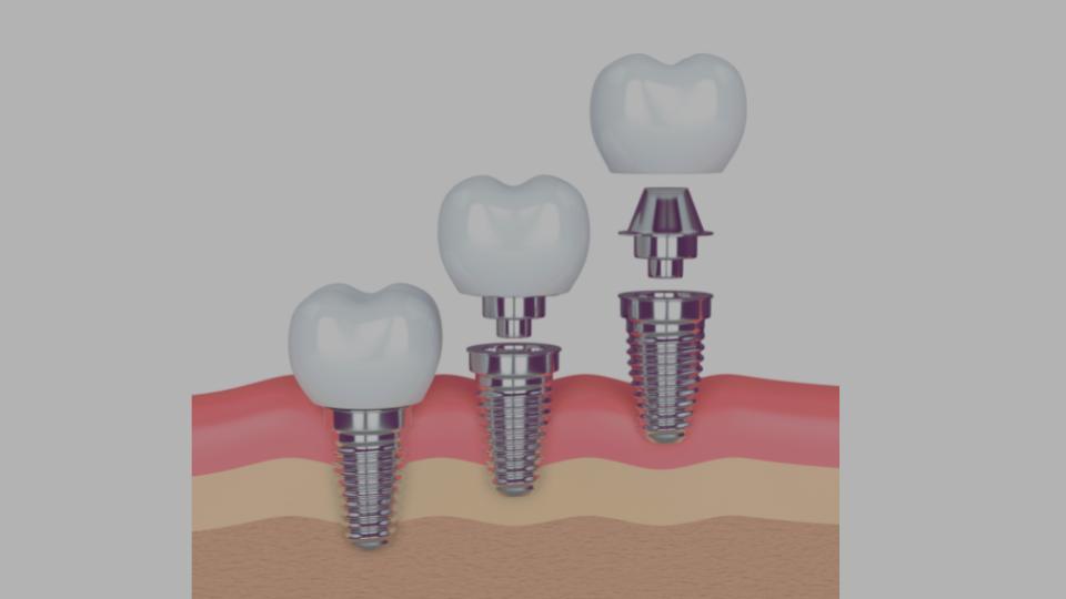 Implant-treatment